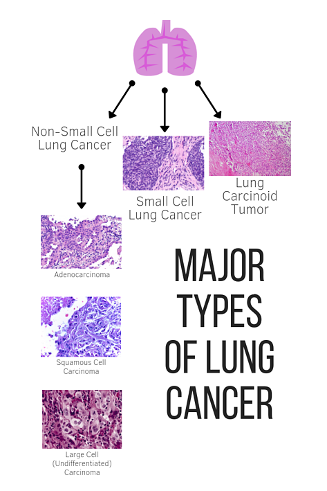Major Types of Lung Cancer