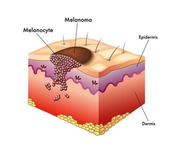 Melanoma Infographic